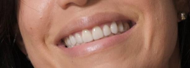 st. Andrew's Dental Centre healthy gums